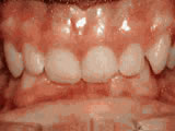 deep overbite before